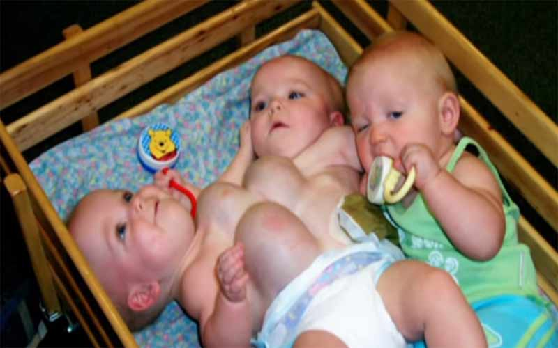Mother Gave Birth Three Conjoined Children Who Interconnected